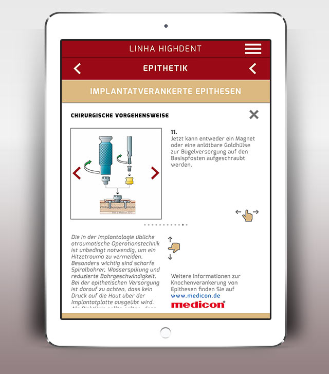Linha Highdent App Epithetik Implantate